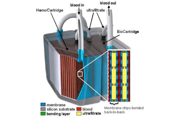 How Does An Artificial Kidney Work